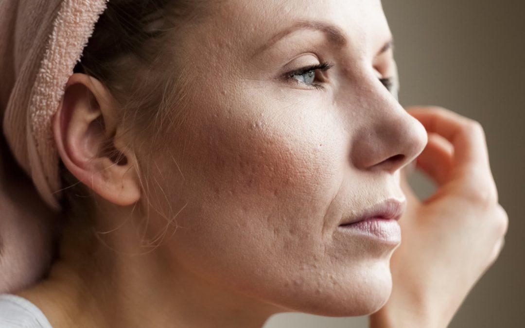 Understanding hormonal acne